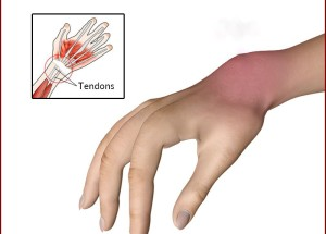 Symptoms-of-Tendonitis-Wrist (2)